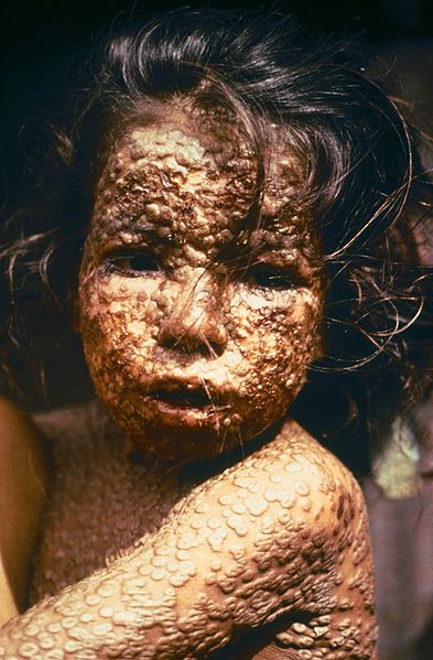 mg60265,1265460687,393px-Child with Smallpox Bangladesh