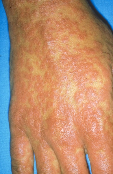 /dateien/mg69294,1294098313,Penicillin Allergy Resulting in Morbilliform Rash-124