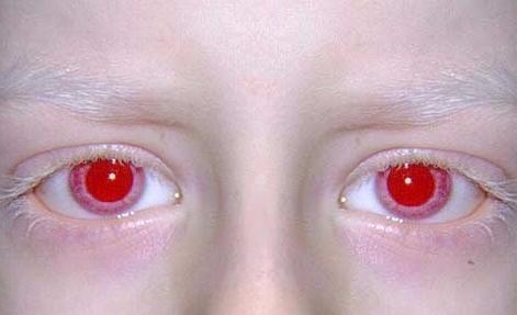 Rote Augen Seite 10 Allmystery