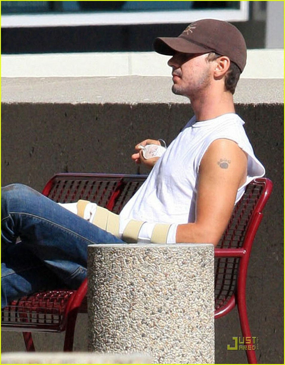 np66944,1289583817,shia-labeouf-broken-fingers-07