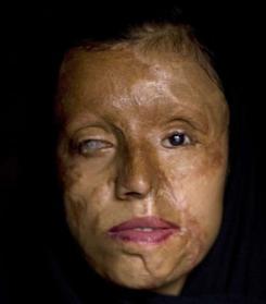 Vrasjet dhe masakrimet e femrave me ligjet islame Rs32753,1264417616,RTEmagicC_smile44.jpg
