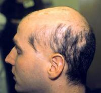 sisaipho alopecia areata