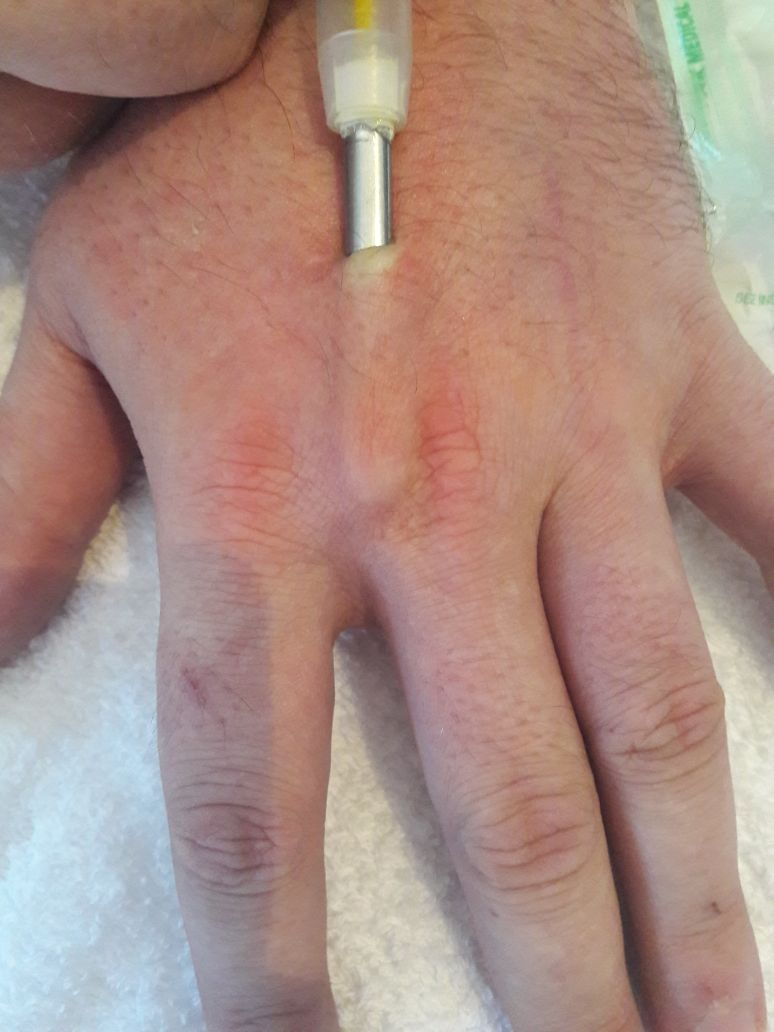 Chip Implantieren
