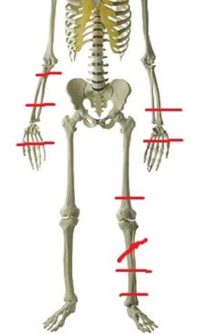 Skeleton with Location of Injuries large