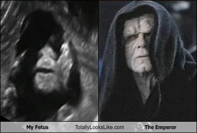 my-fetus-totally-looks-like-the-emperor