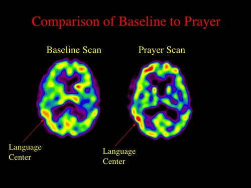 03 spect comparison of baseline to praye