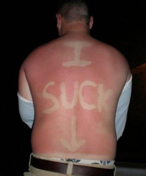 I SUCK Sunburn