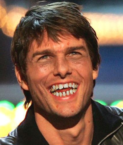 Was haltet ihr vom Bleaching der Zähne? - Allmystery