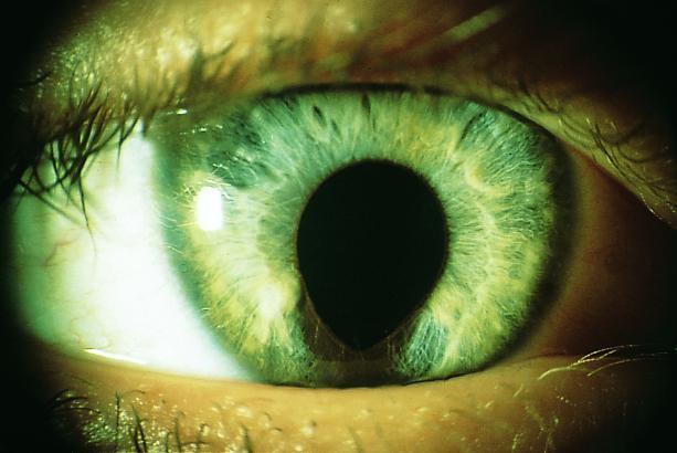 Zwei Augen Beim Wrfeln
