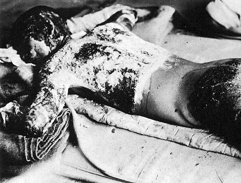 Victim of Atomic Bomb 002